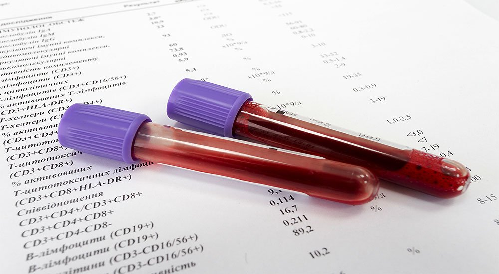 Are You Confused About Your Celiac Disease Lab Results