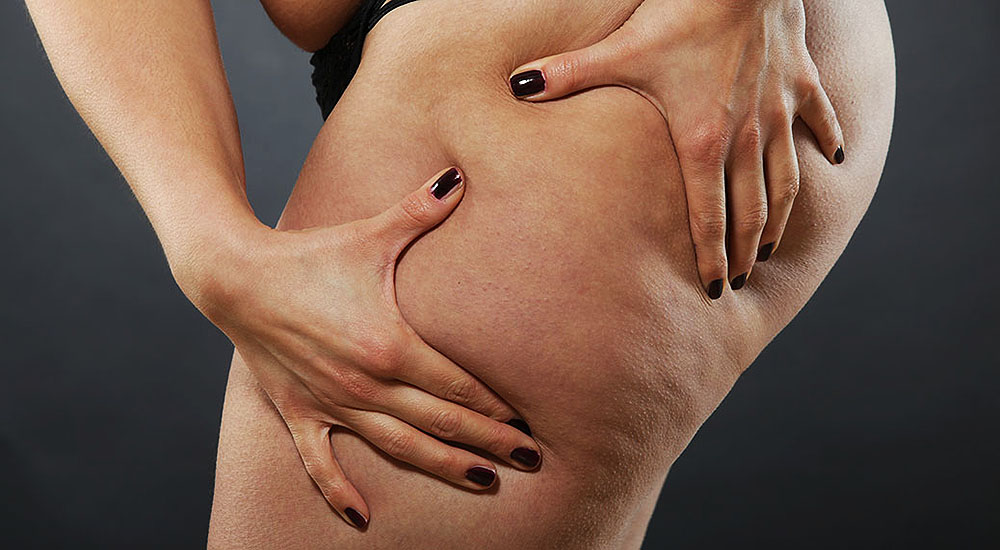 Gluten and Cellulite Is There a Connection and a Cure