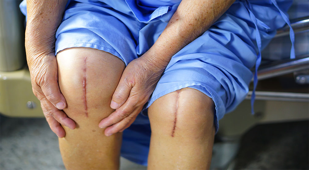 Had a Knee Replacement Why You Need a Physical Therapist