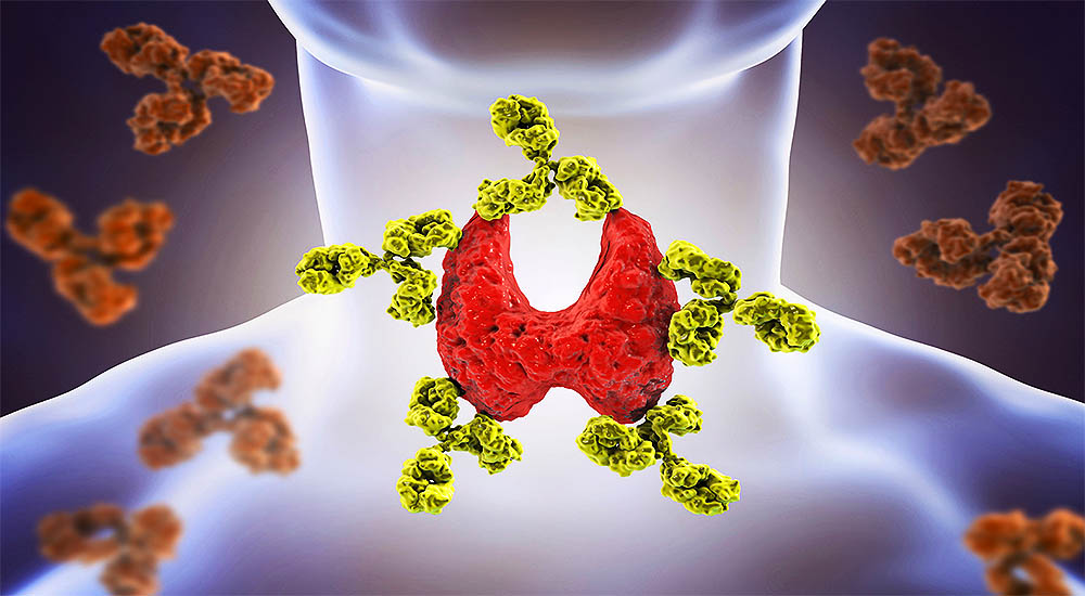Is Autoimmune Disease Slowly Killing You Get Tested!