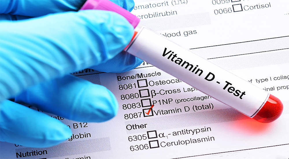 Your Vitamin D Status and Reducing Illness Risk
